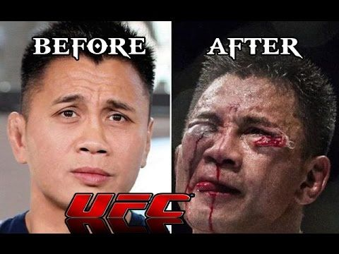 The Hurt Business — UFC Fighters Before And After Octagon Wars