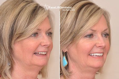 Dr. Sam Muslin will provide you a beautiful smile and better looks with the help of VENLAY Restorations. Under Bite Correction without surgery can rejuvenate your skin and reduce anti aging effects on it. To explore more about it visit the mentioned link.  #UnderBiteCorrectionwithoutsurgery