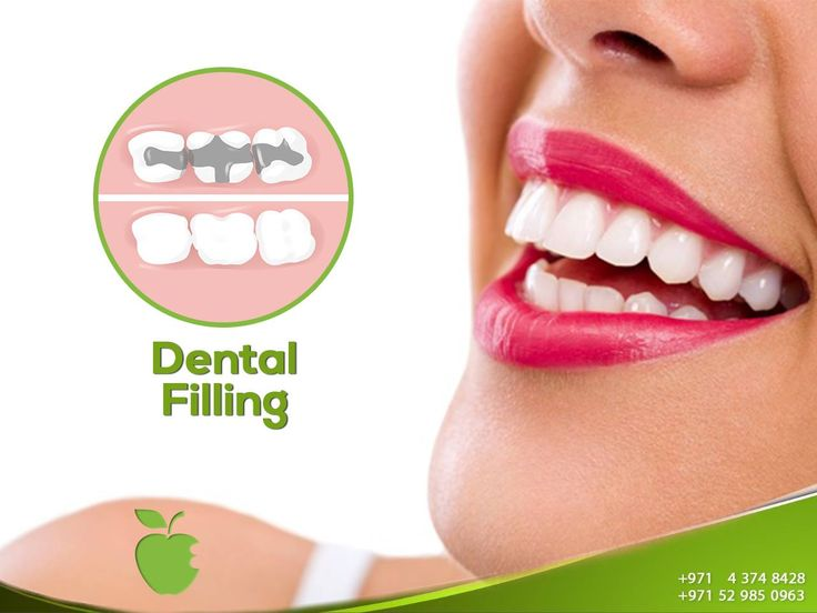 Dental Filling    A dental restoration or dental filling uses restorative material on the tooth to return the tooth to its normal function, integrity and morphology where there is missing tooth structure.     http://americanmdcenter.com/services/dental-filling/  ----------------------  Ask now!  Call us NOW  +971 4 374 8428  #AMDC #Dental_clinic #Dentist_Dubai #Veneer #Dental_Implants#Invisalign #braces #teethwhitening #ZoomWhitening #Mydubai #Dubai#UAE #Quality #Topdentist #love #Smile…