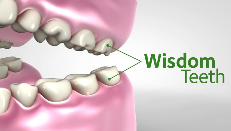 Get Wise About Wisdom Teeth