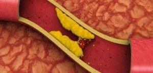 Καρδιοχειρουργός μιλάει για την απάτη της χοληστερίνης!