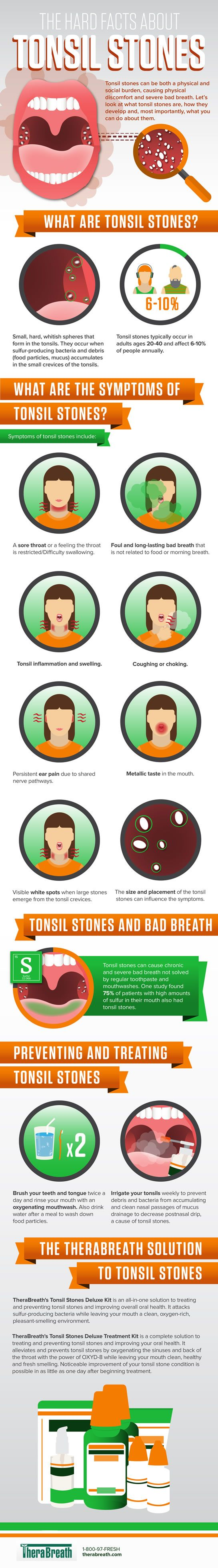 The Hard Facts About Tonsil Stones #Infographic #Health