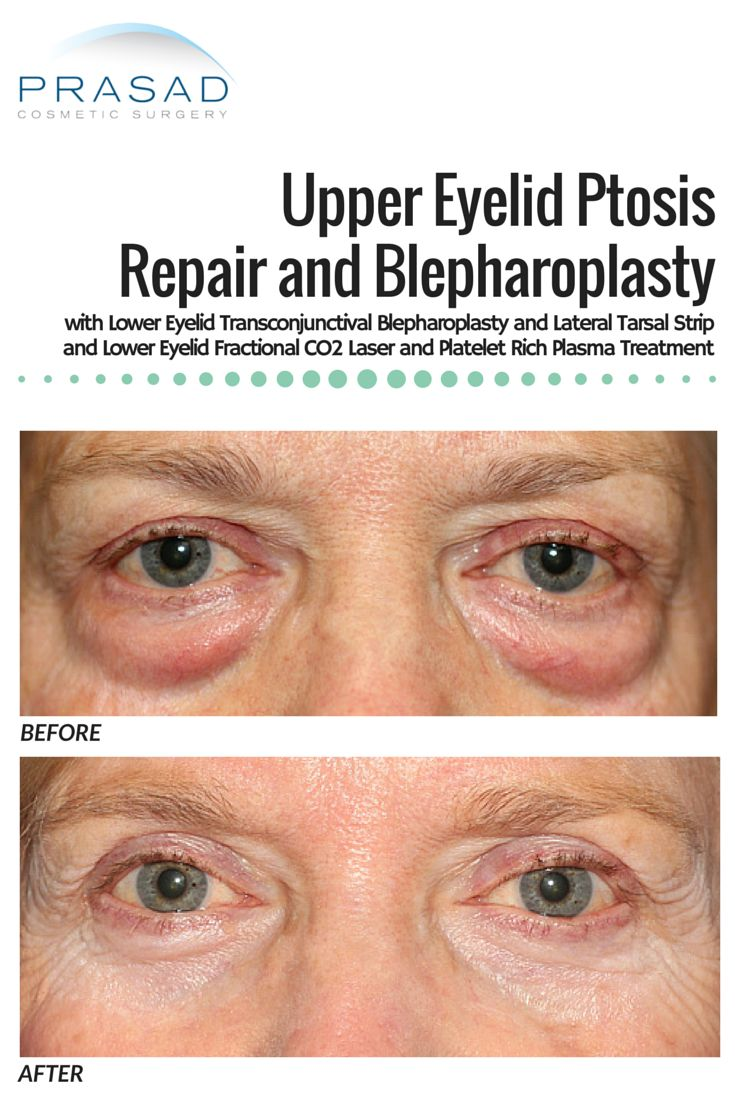 Before and After Upper Eyelid Ptosis Repair and