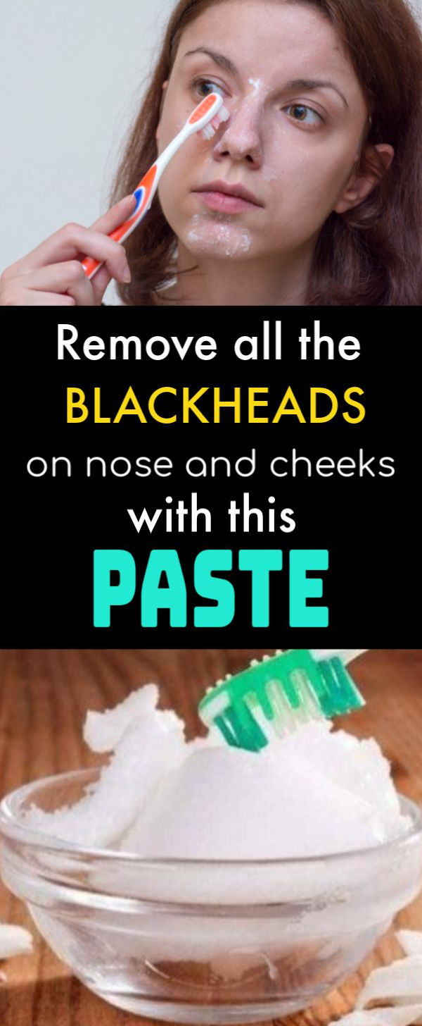 Get rid of Blackheads from nose and cheeks forever, using your toothpaste