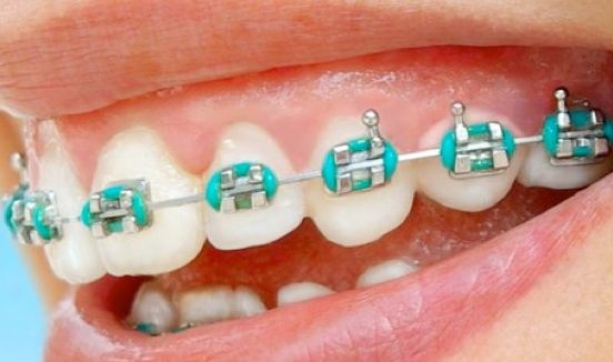 functional braces and its effects on the Dental braces (also known as braces, orthodontic cases, or cases) are devices used in orthodontics that align and straighten teeth and help position them with regard to a person's bite, while also aiming to improve dental health braces also fix gaps.