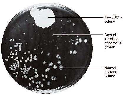 Alexander Fleming penicillin    MedicinExplained: Penicillin - a fortunate accident