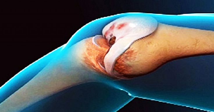 Это средство избавило меня от болей в коленях просто и легко! Такого эффекта я даже и не ожидала! Медикаментозные препараты не могут гарантировать устранение истинной причины проблем и болей в суставах, ногах и спине. Они могут принести гораздо больше сложностей, потому что они имеют в основном обезболевающие свойства и множество побочных нежелательных эффектов. Проявляйте заботу о себе, применяйте натуральные средства и БУДЕТЕ ЗДОРОВЫ! Это простое средство имеет свойство восстанавливать…