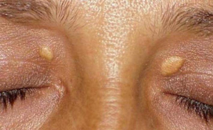 Fibrómy a bradavice sa vám už nikdy neobjavia! Krátka cesta k zdravej koži | Báječné Ženy