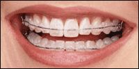 Orthodontic Treatment has evolved over the years and so has Sweet Smile Dental Clinic. For invisible braces, orthodontic braces in pimpri and shorter treatment, orthodontic braces in pune  visit Dr. Sandeep Bhirud & Sweet Smile Dental Clinic in Pimpri Chinchwad Pune. For More Details Visit: http://www.sweetsmiledental.com/dental-treatments/best-orthodontist-in-pimpri-chinchwad-pune/