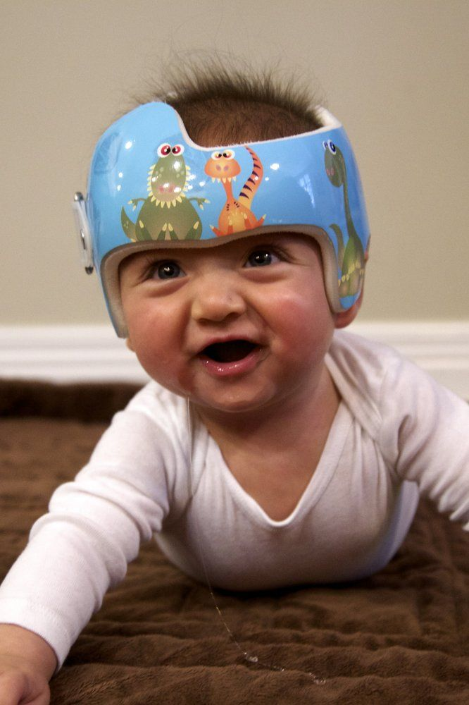 16 best images about decorating your cranial helmets for Baby cranial helmet decoration