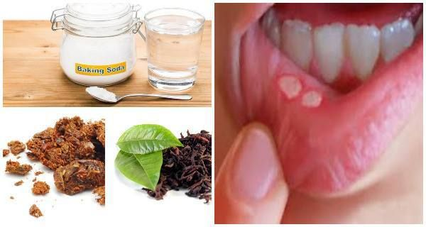 Mouth ulcers are small white and very painful lesions that appear on the mucosa parts in the oral cavity. They are almost followed with intense pain in the affected areas. Mouth ulcers have the abi…