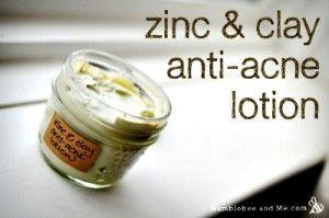 Homemade Zinc & Clay Anti-Acne Lotion