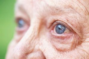 Find out about early signs of 4 common eye diseases that cause blindness and how they affect your senior's vision. #caregiving #caregivers #aging #vision #agingeyes #seniorvision #AMD #maculardegeneration #glaucoma #diabeticretinopathy #cataracts