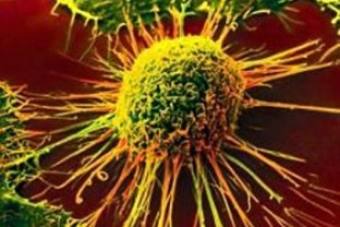 Cancer: Introduction, Part I  http://www.poandpo.com/in-sickness-and-health/cancer-introduction-part-i/