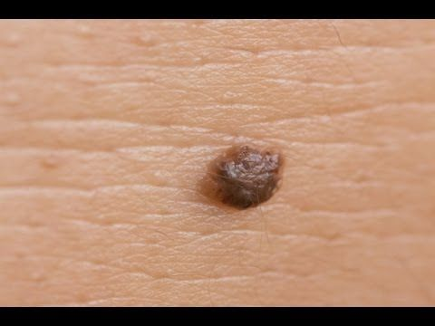 how to get rid of senile warts at home