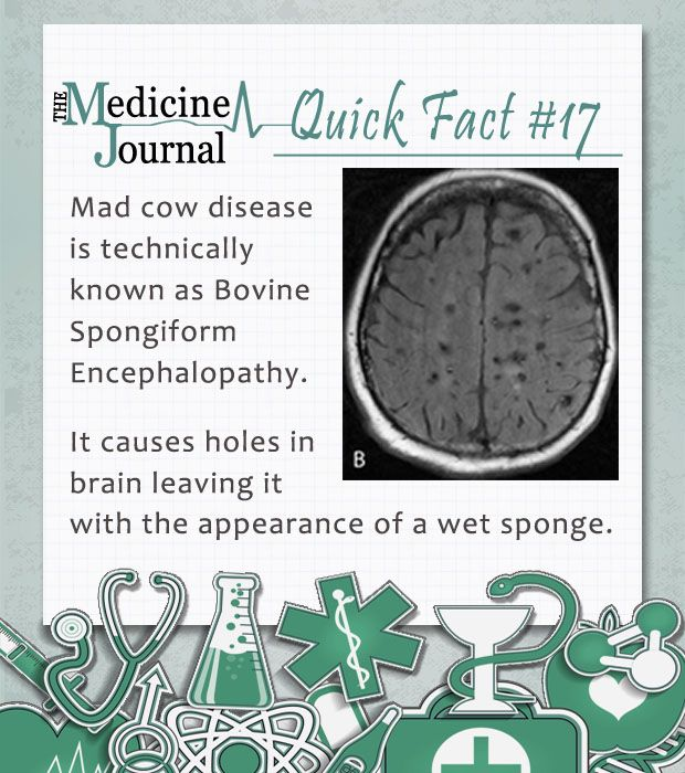 the media and mad cow disease essay Bovine spongiform encephalopathy (bse) is a relatively new disease found primarily in cattle this disease of the bovine breed was first seen in the united kingdom in.