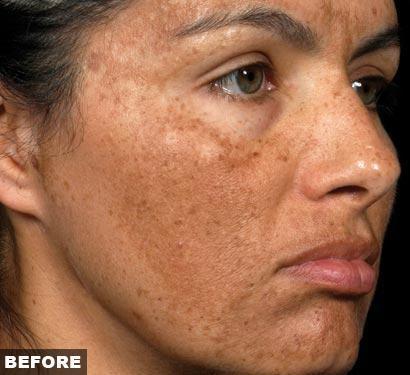 Fraxel re:pair for Melasma and Hyperpigmentation