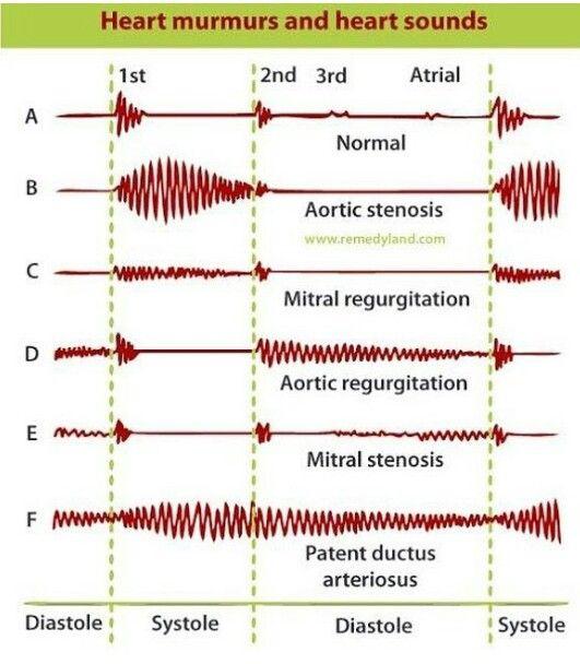 Heart murmurs and heart sounds