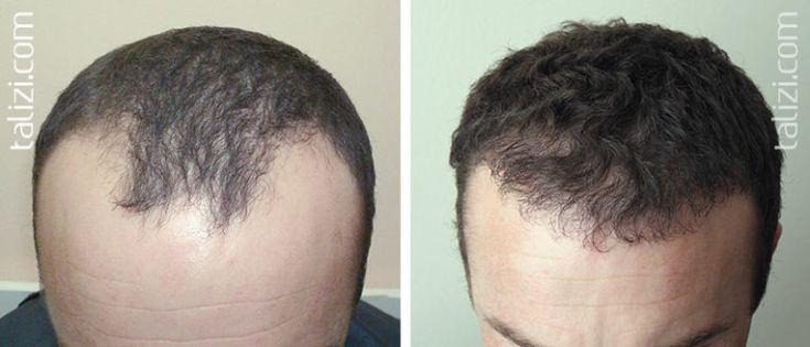 Natron stoppt Haarausfall und fördert das Haarwachstum in kürzester Zeit – Pag…