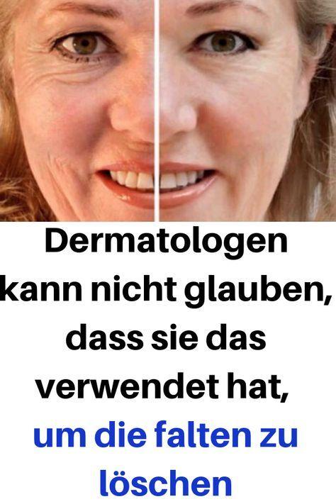 Dermatologen kann nicht glauben, dass sie das verwendet hat, um die falten zu l…