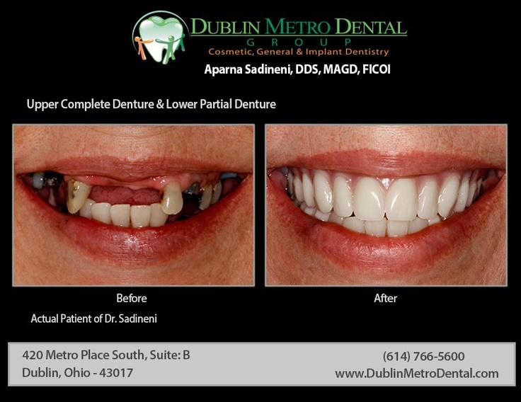 Upper Complete Denture & Lower Partial Denture.