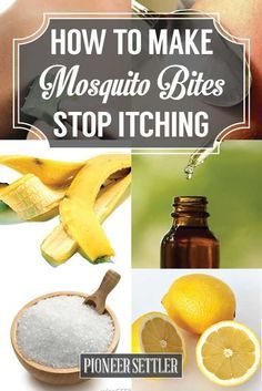 How to Make Mosquito Bites Stop Itching | Natural, Simple but Effective Home Remedies for Mosquito Bites by Pioneer Settler at http://pioneersettler.com/make-mosquito-bites-stop-itching-natural-home-remedies/