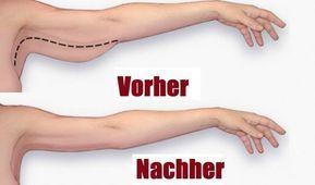 Verliere dein Armfett mit nur 3 Minuten pro Tag! Viele Frauen kennen das 'Schwabbelarm-Problem'. Die Unterseite der Oberarme hängt herunter…