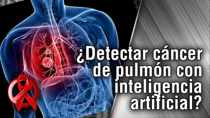 ¿Detectar cáncer de pulmón con inteligencia artificial?