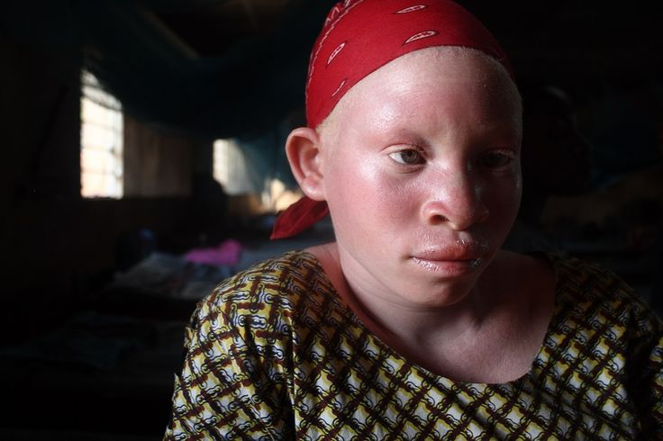 Los albinos en Africa son considerados como «no humanos». Muchas tribus los ven como fantasmas o demonios y son aislados o asesinados para vender su cuerpo.
