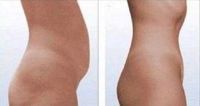 Dites adieu à la graisse du ventre en 2 semaines seulement grâce à ces deux ingrédients parfaitement efficaces !