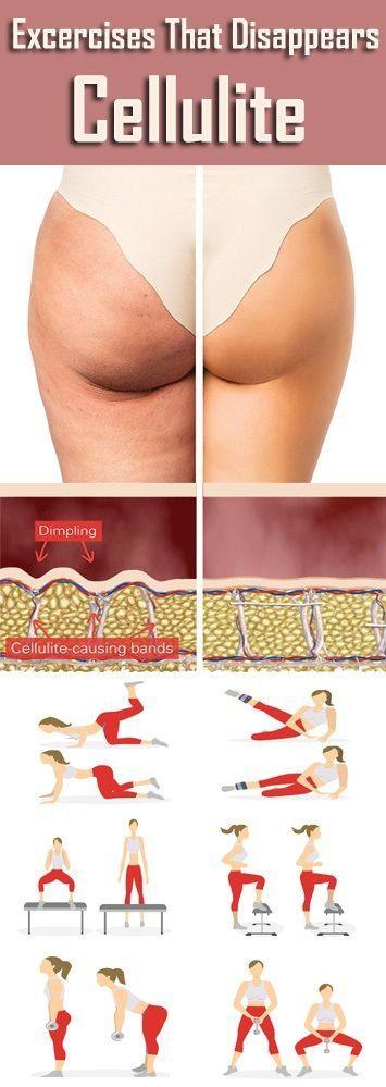 Bist du irritiert über dein Oberschenkelfett? Wollen Sie Ihre Cellulite am Oberschenkel verlieren