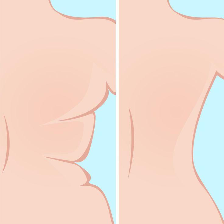 Rückenspeck Übungen