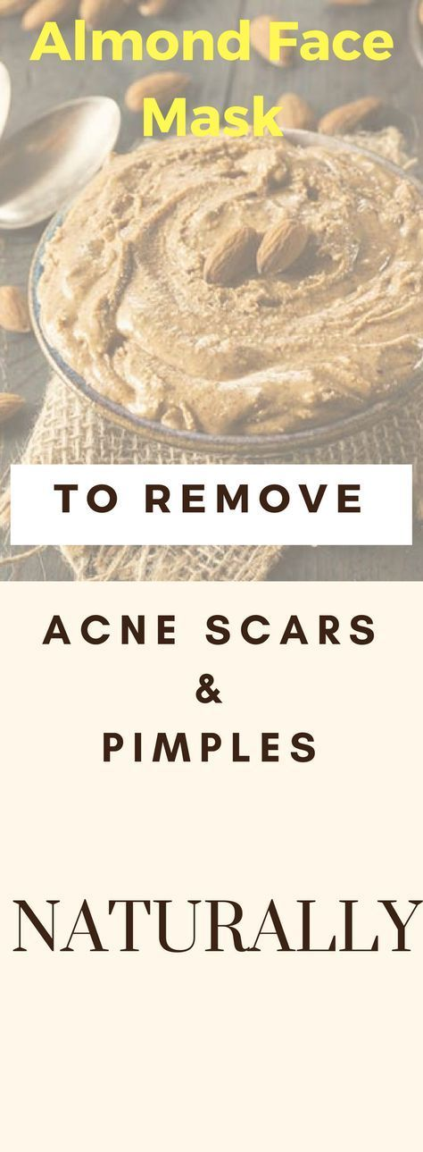 Almond Face Mask To Remove Acne Scars And Pimples Naturally !!