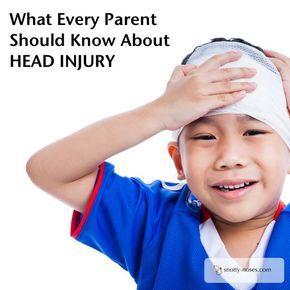 Bump on Head. Head Injury in Children by a pediatrician