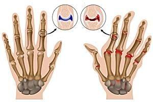 What Causes Rheumatoid Arthritis? Learn Signs, Symptoms & Treatments