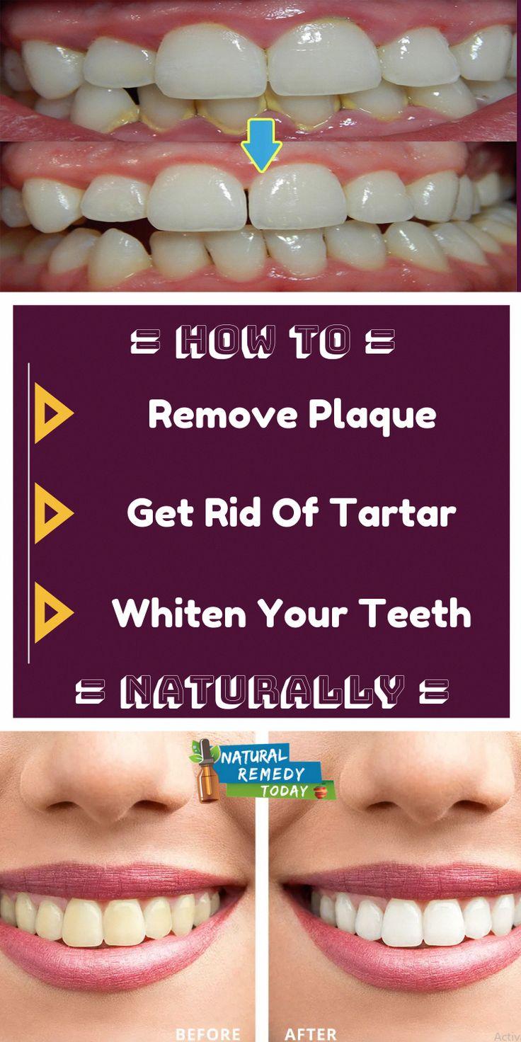 remove plaque + remove tartar + whiten your teeth + remove