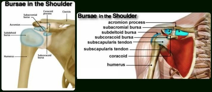 Shoulder Bursitis - Treatment, Exercises, What is, Symptom, Causes, Diagnosis. Bursa present is shoulder joints become inflamed due to any injury