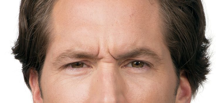 Botox isn's just for women. Men are doing it too!! Before-and-After Photos of Men