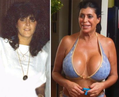 """Big Ang, of """"Mob Wives"""" fame, freely admits having numerous procedures performed, with her first breast augmentation job happening 27 years ago. She admits to having three breast surgeries, a tummy tuck, liposuction, and lip injections. Ang has admitted that she is """"obsessed"""" with getting work done."""