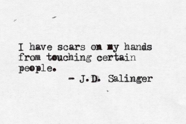 .scars from people