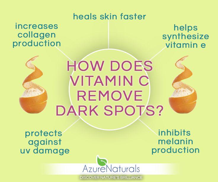 How does Vitamin C remove dark spots?