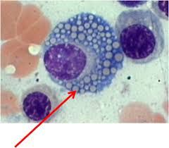 A spectacular example of the grape cell of multiple myeloma. AKA the Mott cell.