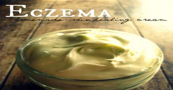 A Homemade Super Effective Healing Cream for Eczema