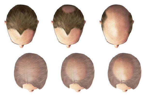 livelli calvizie e caduta di capelli
