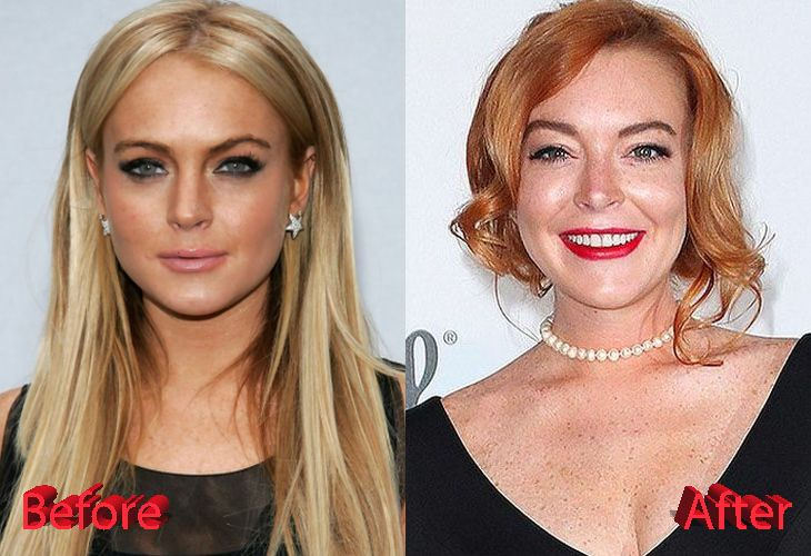 Lindsay Lohan Plastic Surgery : Is She Done With It