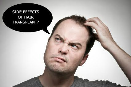 If you don't choose a right #hair transplant doctor then you may face many side effects of #hairTransplant.