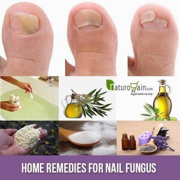 Fungus Nail-behandeling over de toonbank #LasikSurgery – #de #Fungus #LasikSurge…