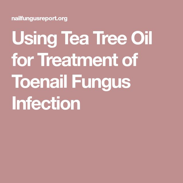 Using Tea Tree Oil for Treatment of Toenail Fungus Infection