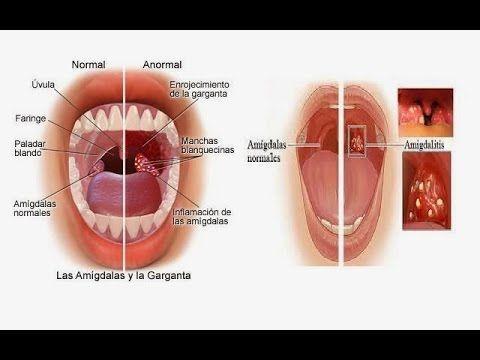 Remedios naturales amigdalitis purulenta
