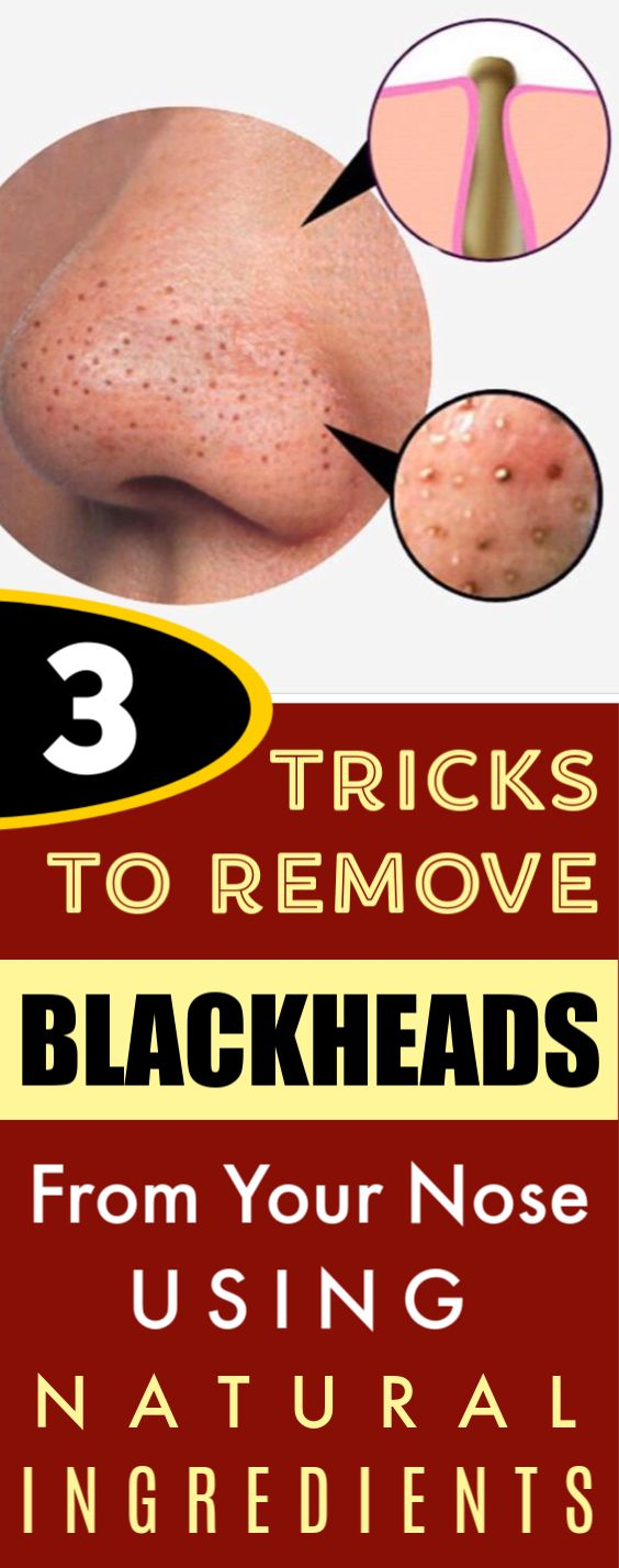 3 Easy DiY Tricks to Remove Blackheads from Your Nose Using Natural Ingredients